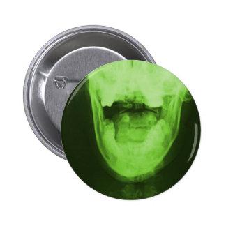 3 radiografados - Verde radioativo Bóton Redondo 5.08cm