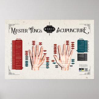 A acupunctura de Tung mestre - áreas 11 e poster