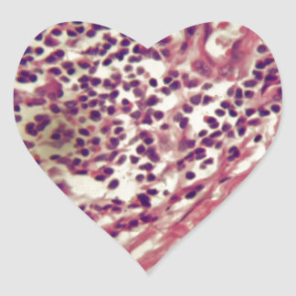 Adesivo Coração Células cancerosas do estômago sob o microscópio