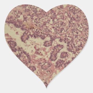 Adesivo Coração Pilhas da glândula de tiróide com cancer