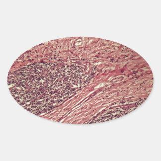 Adesivo Oval Células cancerosas do estômago sob o microscópio