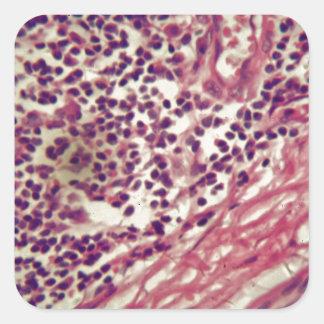 Adesivo Quadrado Células cancerosas do estômago sob o microscópio