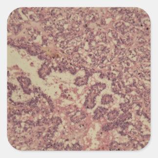 Adesivo Quadrado Pilhas da glândula de tiróide com cancer