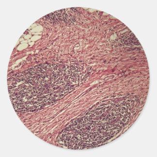 Adesivo Redondo Células cancerosas do estômago sob o microscópio