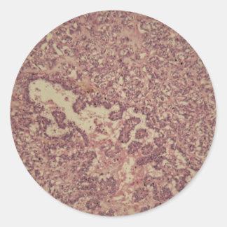 Adesivo Redondo Pilhas da glândula de tiróide com cancer