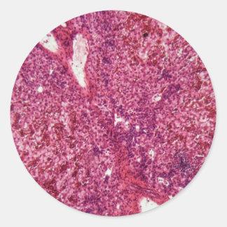 Adesivo Redondo Pilhas de fígado humanas com cancer sob o
