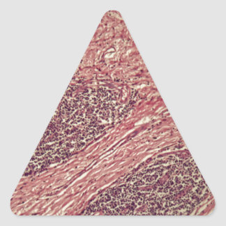 Adesivo Triangular Células cancerosas do estômago sob o microscópio