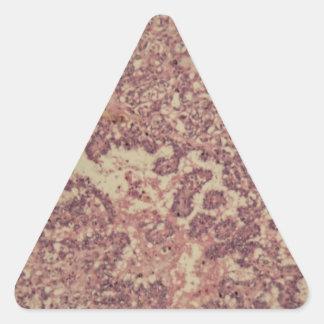 Adesivo Triangular Pilhas da glândula de tiróide com cancer