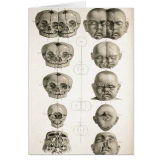 As deformidades infantis do crânio estranhas/Conjo Cartão Comemorativo