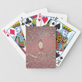Baralho Para Poker Baço humano com leucemia myelogenous crônica