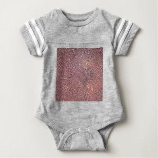 Body Para Bebê Baço humano com leucemia myelogenous crônica