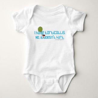 Body Para Bebê Eu tenho o Torticollis. Não, não fere
