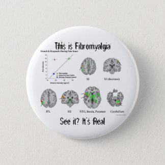 Bóton Redondo 5.08cm A fibromialgia é real. prova do fMRI
