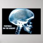 Cabeça do futebol (raio X) Pôsteres