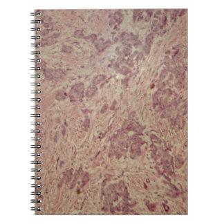 Caderno Cancro da mama sob o microscópio