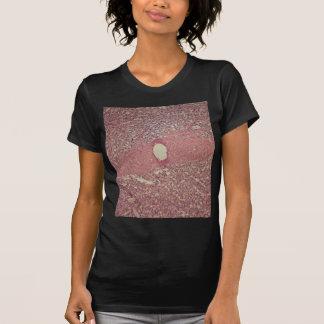 Camiseta Baço humano com leucemia myelogenous crônica