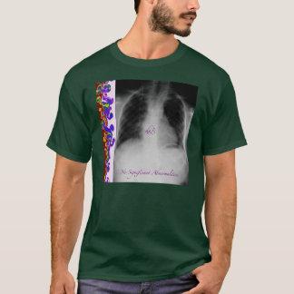 Camiseta Nenhumas anomalias significativas