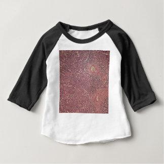 Camiseta Para Bebê Baço humano com leucemia myelogenous crônica