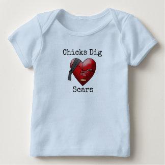 """Camiseta Para Bebê Dos """"t-shirt das cicatrizes da escavação"""