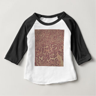 Camiseta Para Bebê Pilhas da glândula de tiróide com cancer