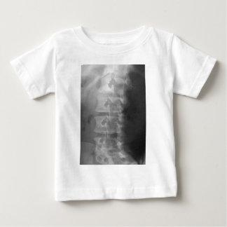 Camiseta Para Bebê síndrome do cão do scottie