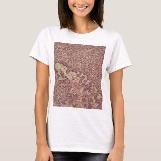 Camiseta Pilhas da glândula de tiróide com cancer