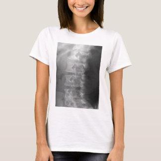 Camiseta síndrome do cão do scottie