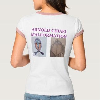 Camiseta SINTOMAS da MALFORMAÇÃO de ARNOLD CHIARI   * Hea…