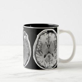 Caneca da imagem do cérebro de MRI