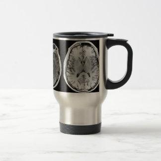 Caneca de viagem da imagem do cérebro de MRI