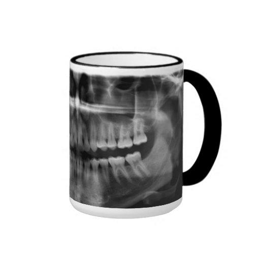 Caneca Radiografia Radiologia