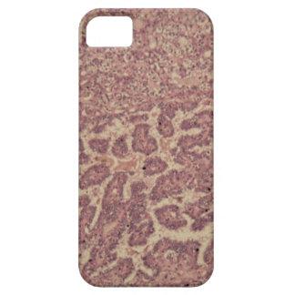Capa Barely There Para iPhone 5 Pilhas da glândula de tiróide com cancer
