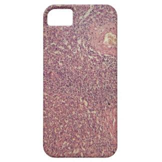 Capa Para iPhone 5 Baço humano com leucemia myelogenous crônica