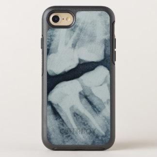 Capa Para iPhone 8/7 OtterBox Symmetry Fim-acima de um raio X dental