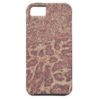 Capa Tough Para iPhone 5 Pilhas da glândula de tiróide com cancer