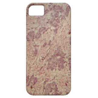 Capas Para iPhone 5 Cancro da mama sob o microscópio