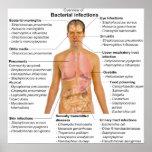 Carta das infecções bacterianas principais nos ser posteres