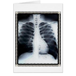 Cartão Caixa do raio X