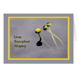 Cartão da cirurgia de transplantação do fígado com