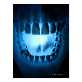 Cartão Postal Área da boca