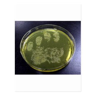 Cartão Postal Bactérias do prato de Petri da mão