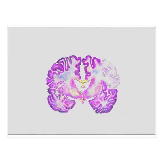 Cartão Postal Brain