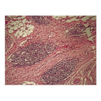 Cartão Postal Células cancerosas do estômago sob o microscópio