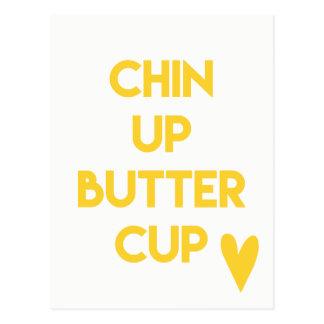 Cartão Postal Chin acima do divertimento do botão de ouro  