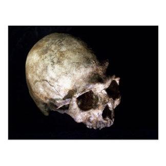 Cartão Postal Crânio humano adiantado