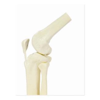 Cartão Postal Modelo da articulação do joelho do pé humano
