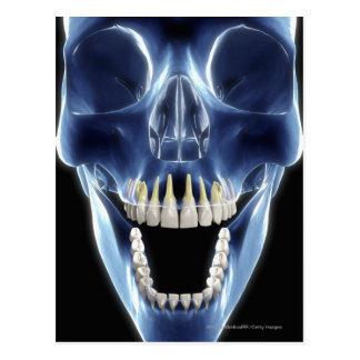 Cartão Postal Olhar do estilo do raio X nos dentes humanos