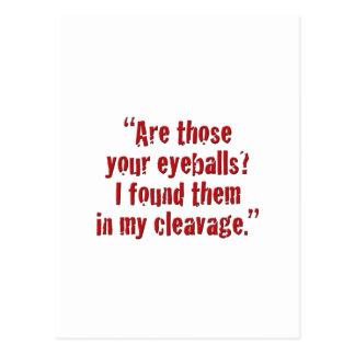 """Cartão Postal """"São aqueles seus globos oculares?"""