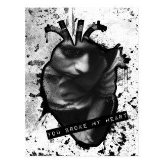 Cartão Postal você quebrou meu coração anatômico do coração