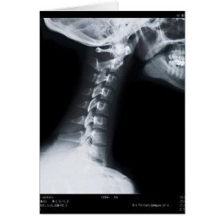 Cartão Raio X das vértebras do pescoço que incluem a mais